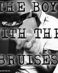 The Boy With The Bruises(Harry Styles)